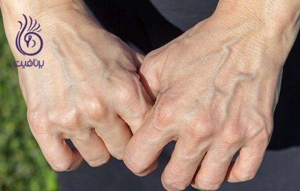 دست های جوان تری داشته باشیم ، برنافیت