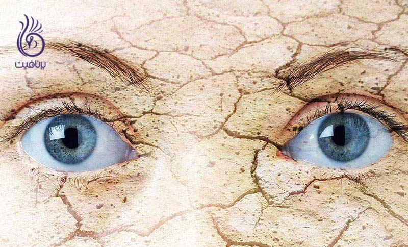 چگونه از خشکی چشم ها جلوگیری کنیم؟ ، برنافیت