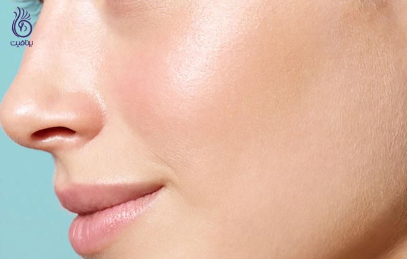 مراقبت های پوستی ، برنافیت