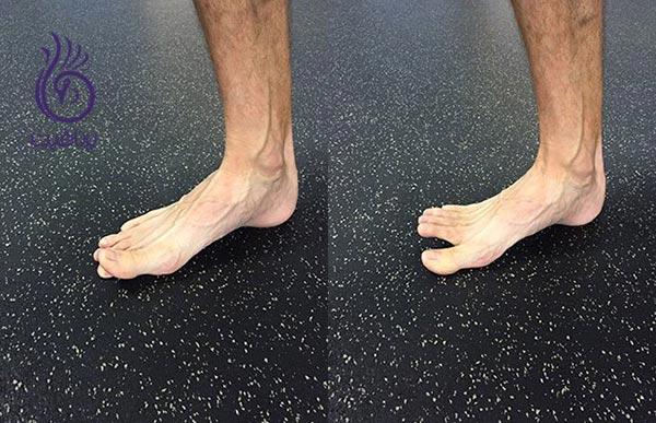ورزش های پا برای افرادی که از کتانی استفاده نمی کنند ، برنافیت