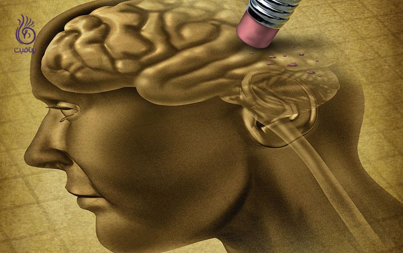 غذاهایی که خطر ابتلا به آلزایمر را افزایش می دهند
