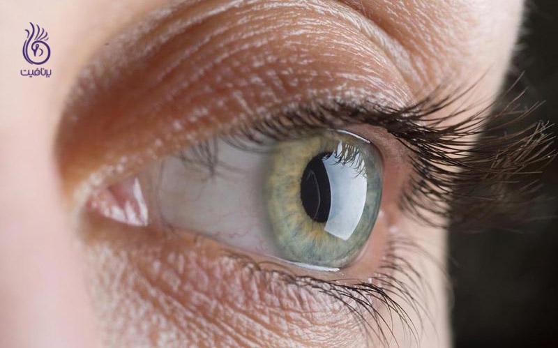 چه عوامل دیگری به جز پیری، موجب کاهش بینایی می شود؟