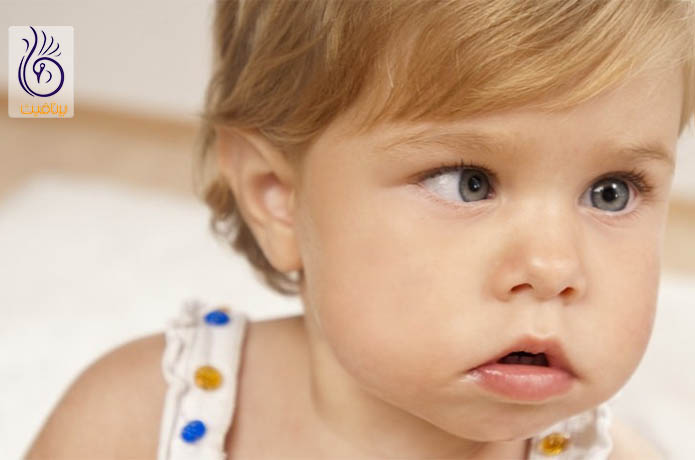 انحراف چشم کودک هنگام ضربه به سر