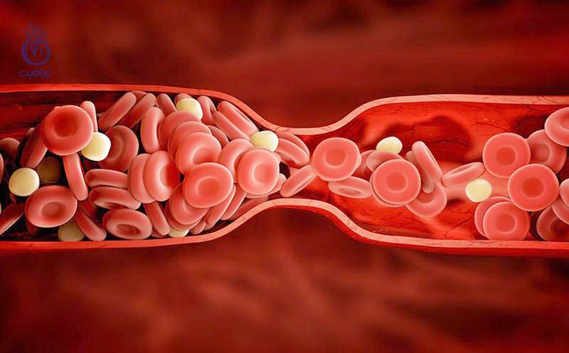 نتیجه تصویری برای لختگی خون