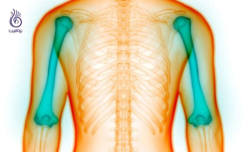 علائم خاموش بیماری های مربوط به استخوان