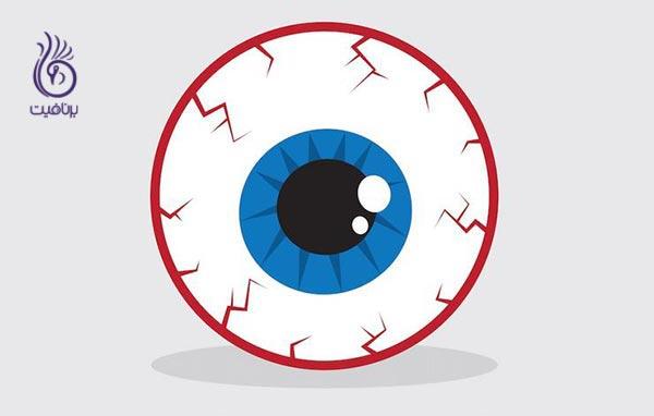 ترشحات زرد رنگ گوشه ی چشم نشانه ی چیست؟