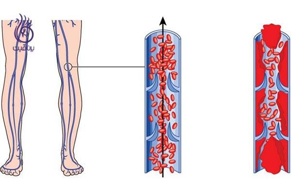 علائم لخته شدن خون کدامند؟