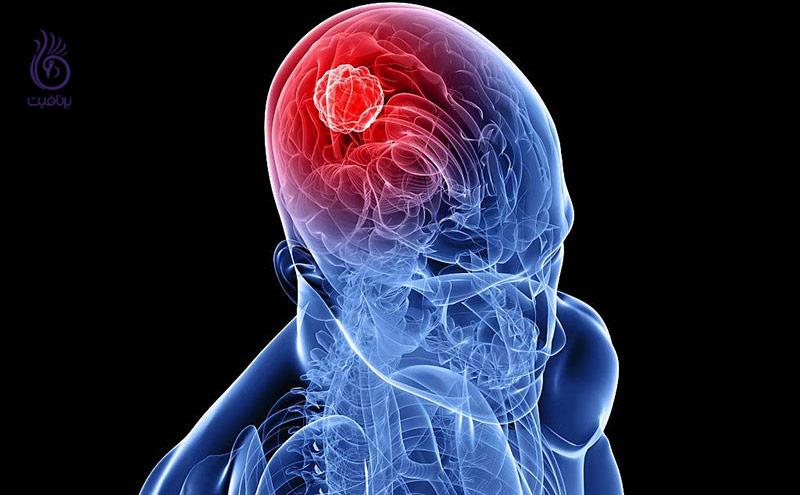 علائم هشدار دهنده ی تومور مغزی ، برنافیت