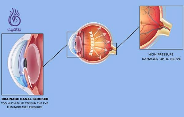 5 بیماری چشمی که نباید نادیده بگیرید