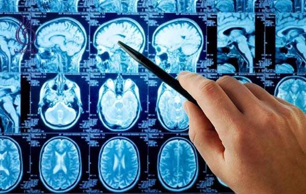 علائم هشدار دهنده ی تومور مغزی