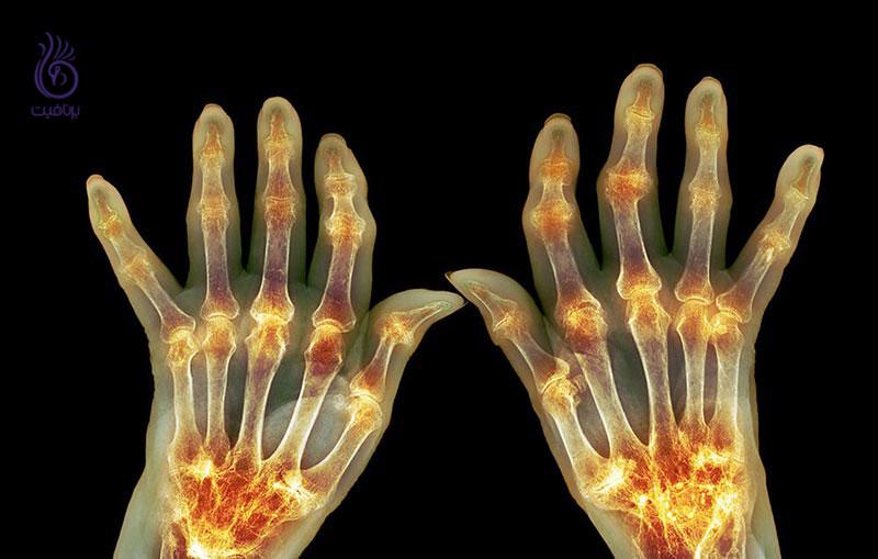 با علائم عجیب بیماری آرتریت آشنا شوید