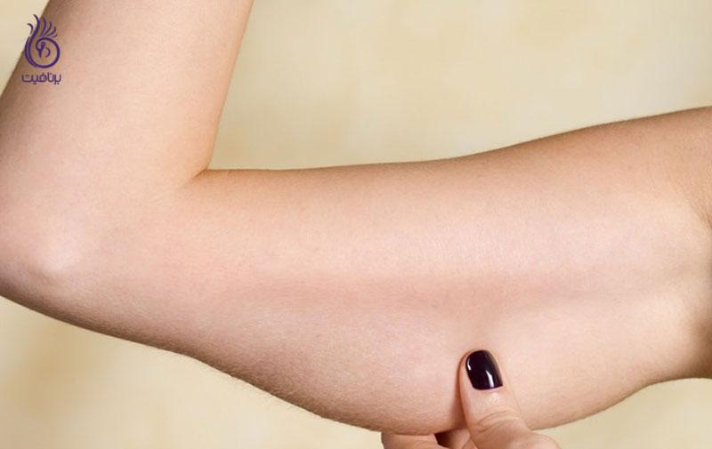 رهایی از چربی بازوها- ورزش- برنافیت