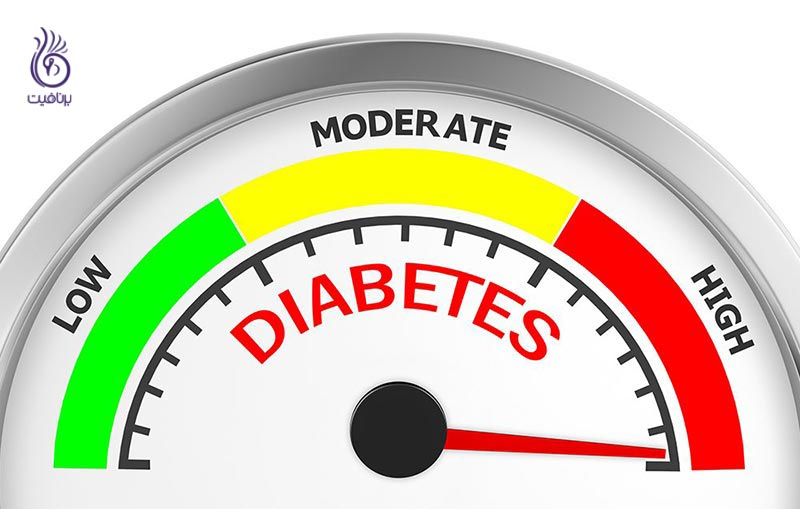 علائم پیش دیابت - زندگی سالم - برنافیت