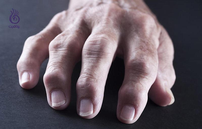این رژیم غذایی، درد مفاصل تان را تسکین می دهد- برنافیت