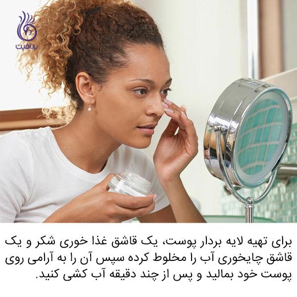 درمان خانگی برای مشکلات پوستی - لایه بردار - برنافیت