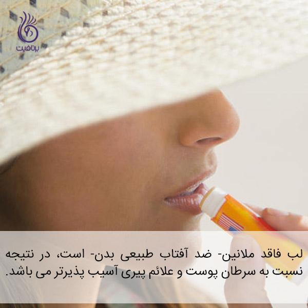 سرطان پوست - لب ها - برنافیت