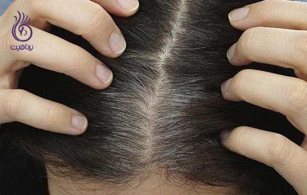 محصولات آرایشی که بهتر است آنها را مصرف نکنید - مو - برنافیت
