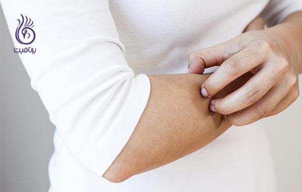 علائم پیش دیابت - لکه پوستی - برنافیت