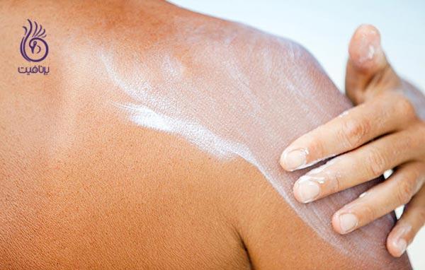 سرطان پوست - ضد آفتاب - برنافیت