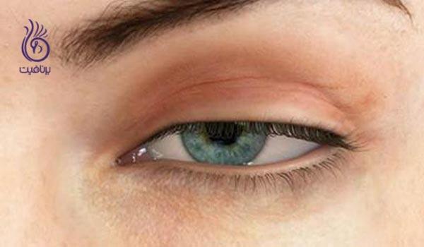 با دلایل خشکی چشم ها آشنا شوید - برنافیت