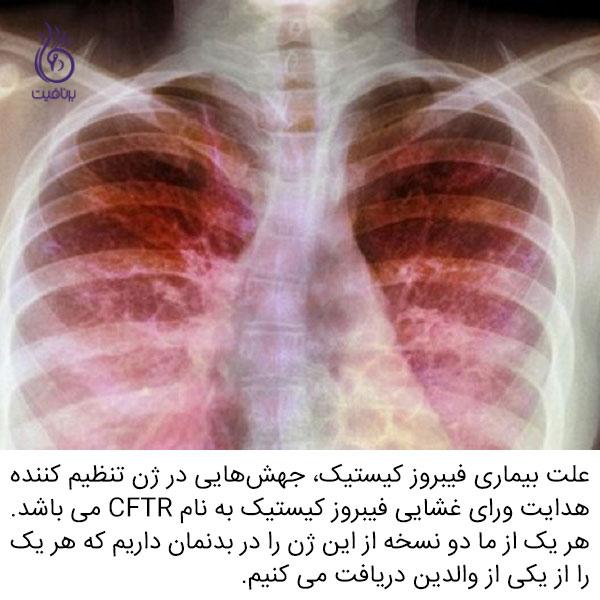 فیبروز کیستیک - ریه - برنافیت دکتر کرمانی
