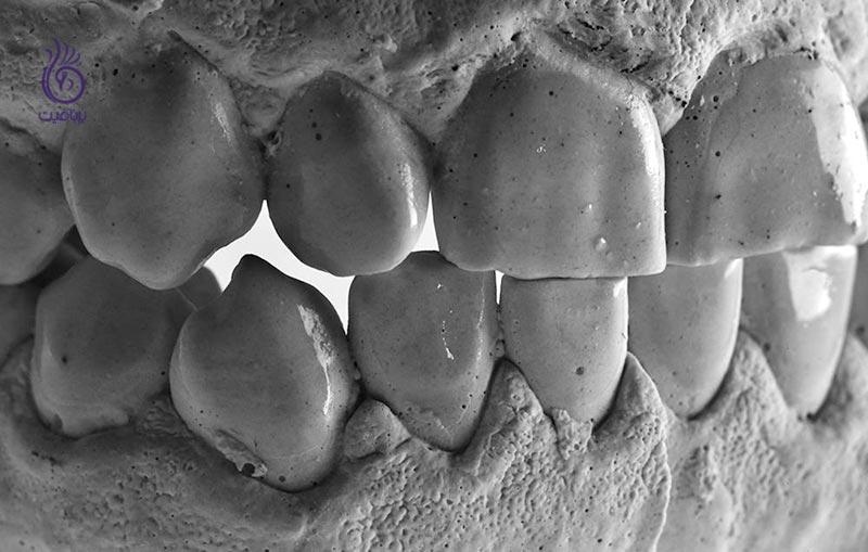 از دندان قروچه جلوگیری کنیم - برنافیت