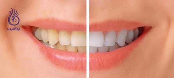 این 7 قدم دندان های شما را زیباتر می کنند - سفید کردن دندان - برنافیت