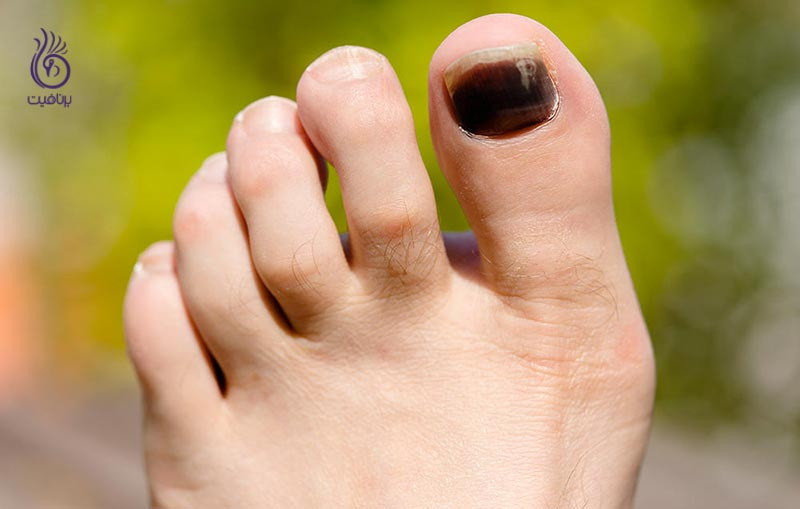 سیاه شدن ناخن ها - برنافیت