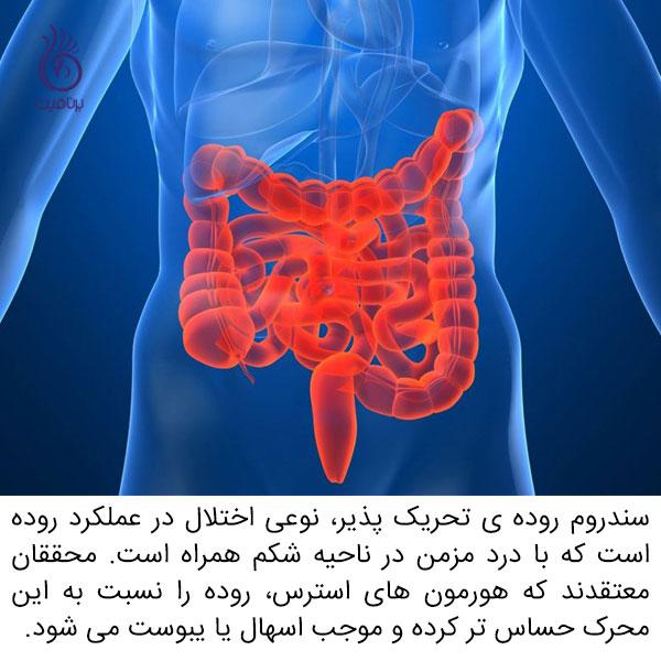 دلایل شکم درد - سندروم روده تحریک پذیر - برنافیت