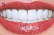 این 7 قدم دندان های شما را زیباتر می کنند