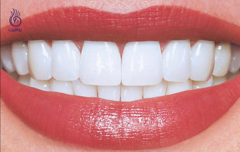 این 7 قدم دندان های شما را زیباتر می کنند - برنافیت