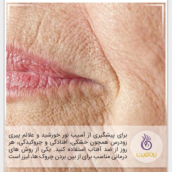 7 نشانه پیری که در چهره شماست - چروک - برنافیت
