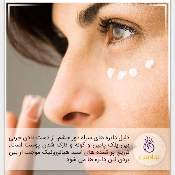 7 نشانه پیری که در چهره شماست - دایره دور چشم - برنافیت