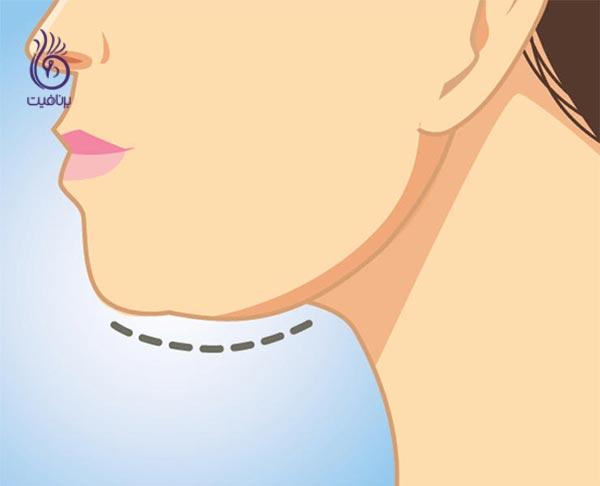 7 نشانه پیری که در چهره شماست - غبغب - برنافیت