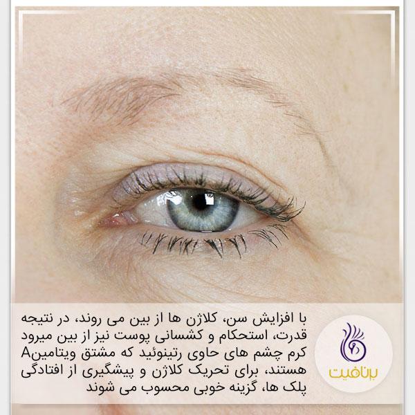 7 نشانه پیری که در چهره شماست - افتادگی پلک - برنافیت