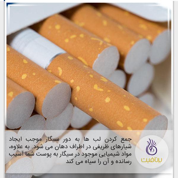 چین و چروک در پوست - سیگار - برنافیت
