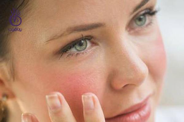 روش های لایه برداری از پوست های مختلف - برنافیت