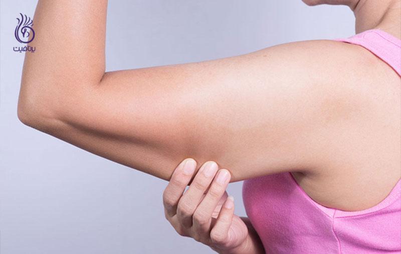 بهترین تمرین ورزشی برای رهایی از بازو های شل و افتاده - برنافیت