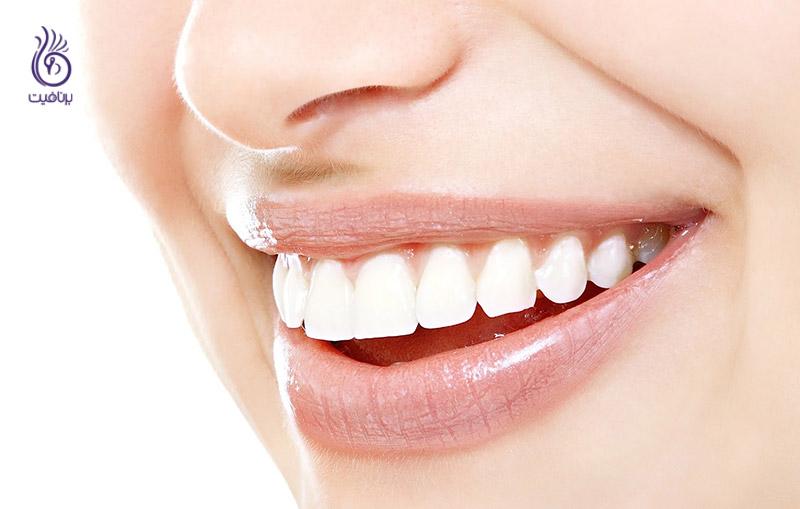 درمان لثه - لبخند - برنافیت