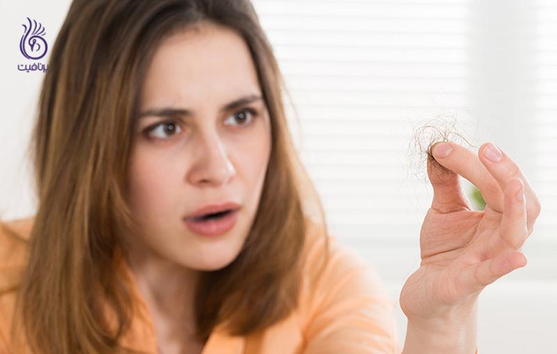 ریزش مو حاصل از تیروئید - ریزش مو - برنافیت