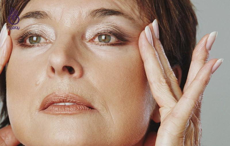 آسیب پوست -مراقبت از پوست - برنافیت