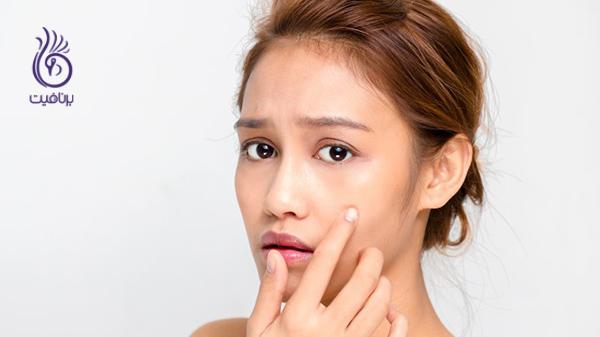 آرایش - آسیب پوست - برنافیت