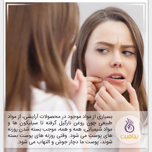 آرایش - منافذ پوست - برنافیت