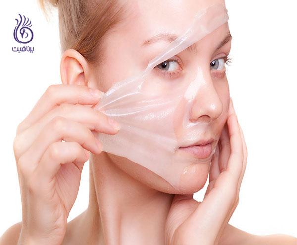 پوست چرب- لایه برداری- برنافیت