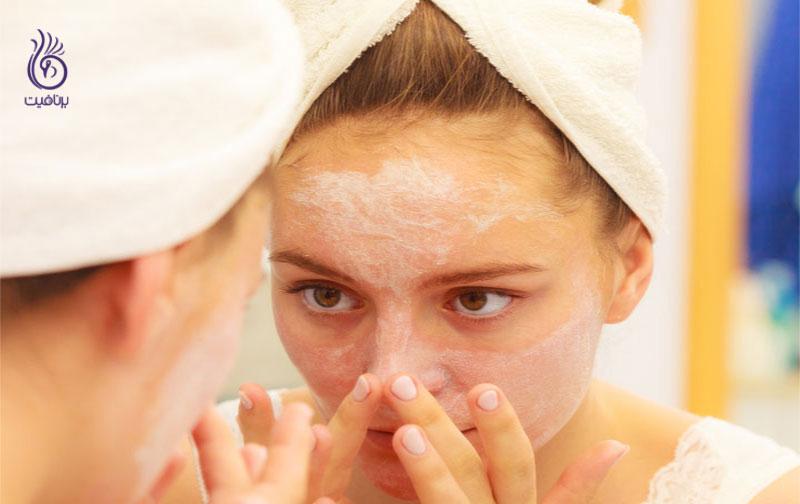 پوست چرب- زیبایی- برنافیت