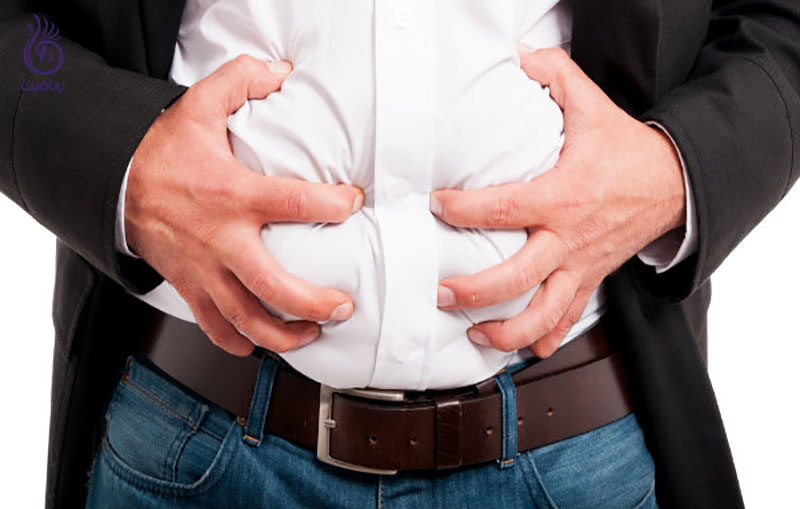 آب کردن چربی شکم- چاقی موضعی- برنافیت