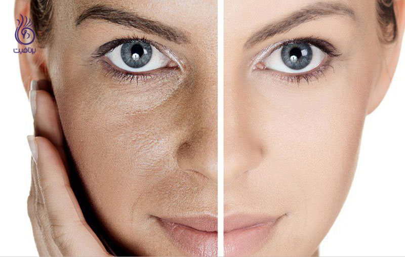 منافذ باز پوست- زیبایی- برنافیت