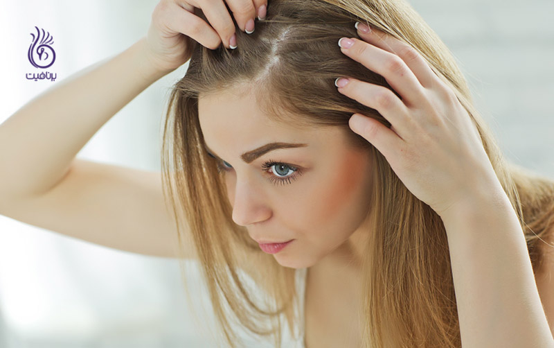 مزونیدلینگ- درمان ریزش مو- برنافیت
