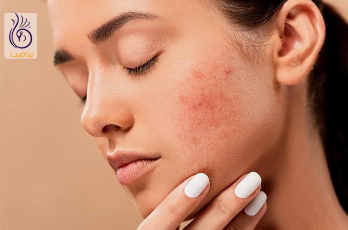 درمان جوش صورت