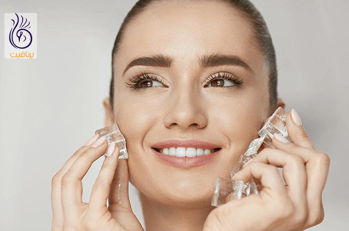 درمان جوش صورت با کمپرس یخ